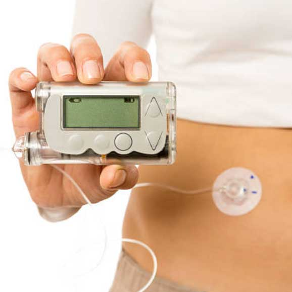 Photo of diabetic insulin pump